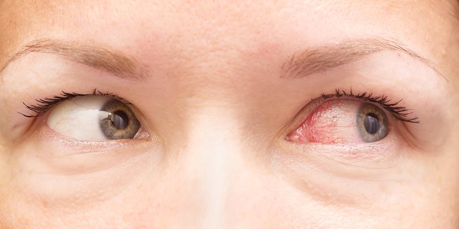 Pink eye/conjunctivitis
