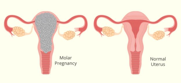 Molar-Pregnancy-Symptoms-Causes-And-Treatment-624x289