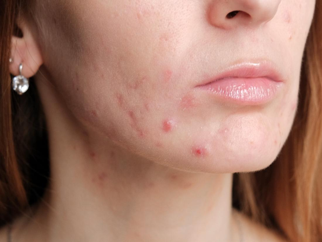 a-woman-with-pregnancy-acne