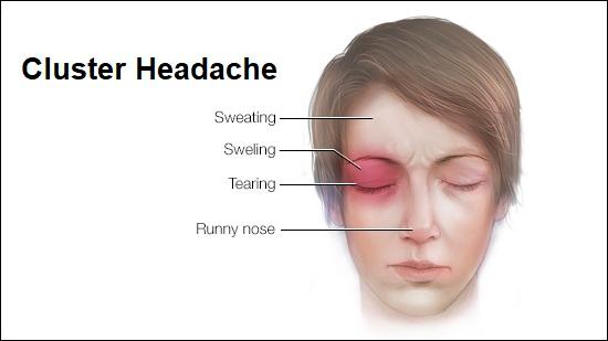 cluster-headaches